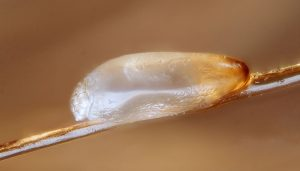 How to Get Rid of Lice Eggs Safely and Naturally