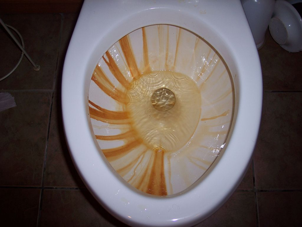 Vinegar Based Methods To Get Rust Rings And Hard Water Stains Out Of A Toilet Bowl